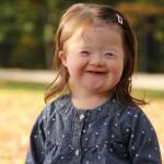 Mosoly télen-nyáron: Down-szindrómás gyerekek fotói
